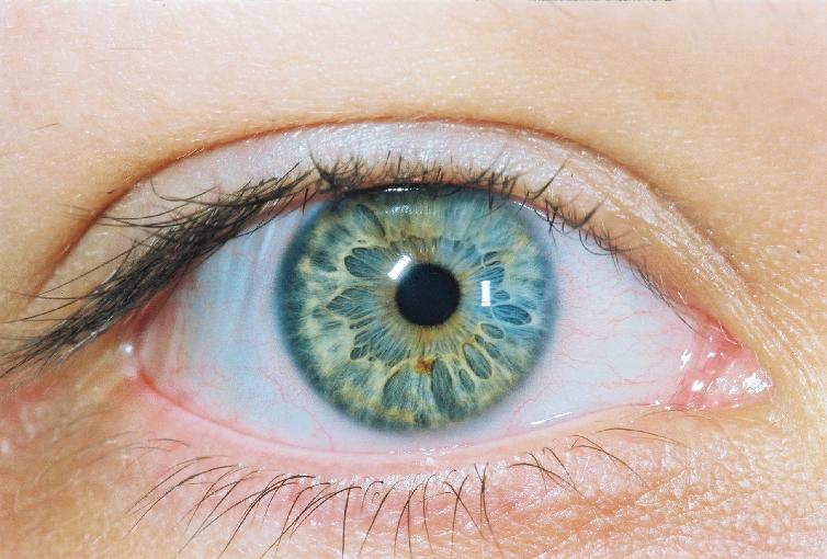 What are The Vitamins and Nutrients That Help Prevent Glaucoma from Worsening