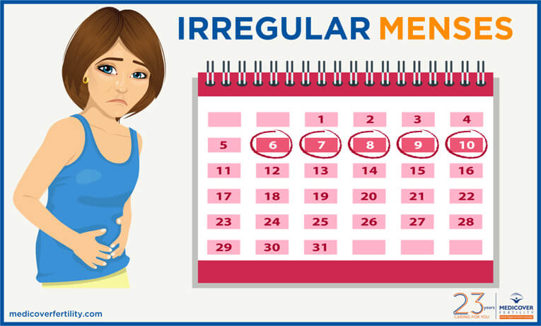 Irregular Menses - irregular period symptoms and Treatment